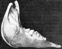 Aus: Lehmann-Nitsche 1931
